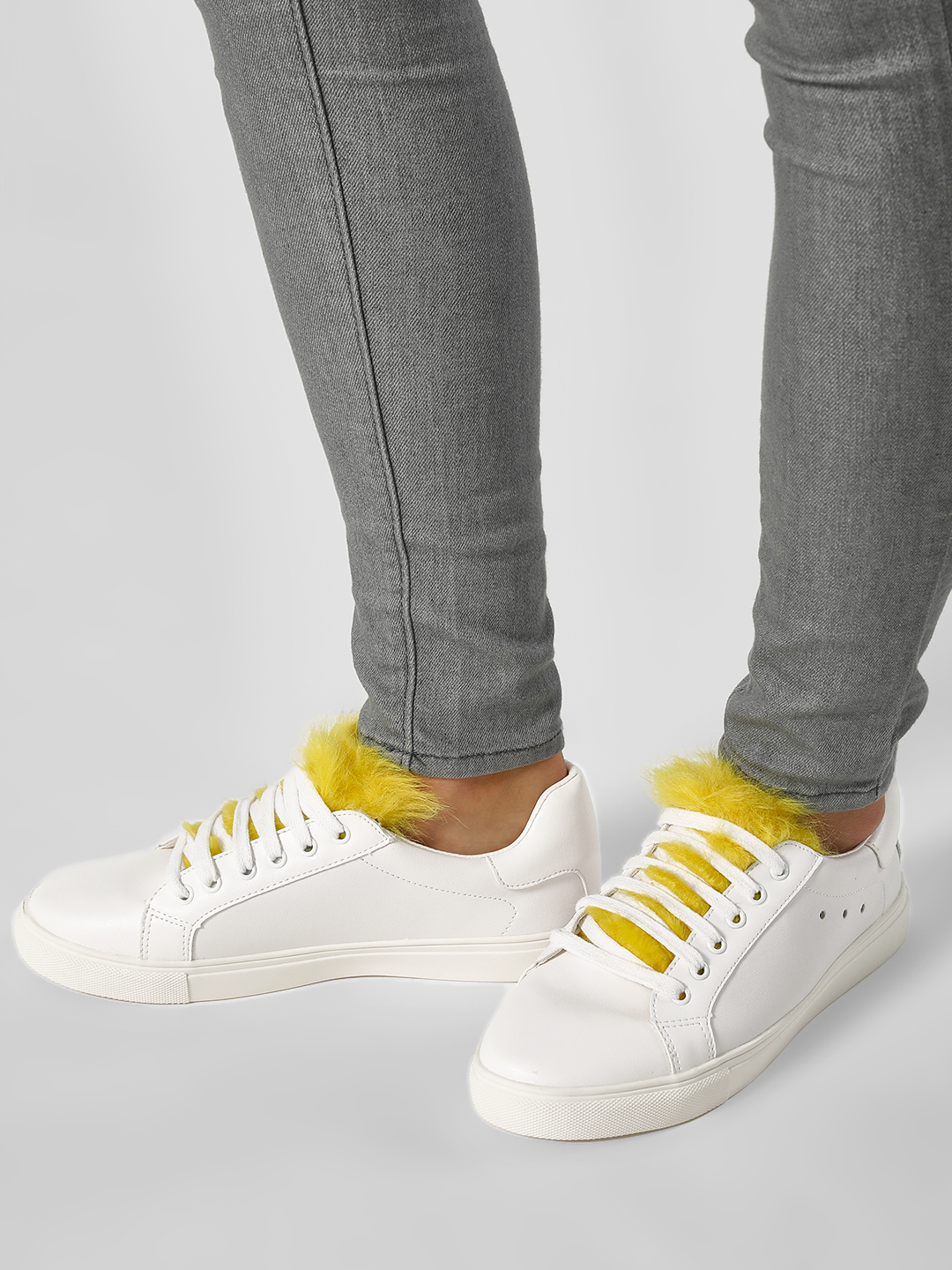 My Foot Couture Yellow Fur Tongue Patch Trainers 1